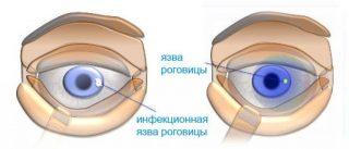 Что такое инфильтрат роговицы thumbnail