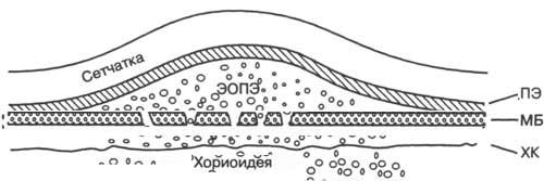 Четкие границы на сетчатке