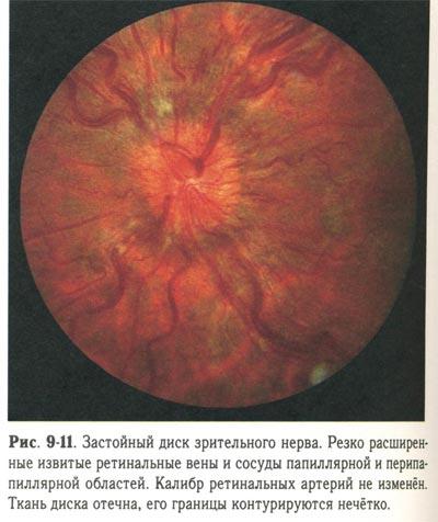 отек диска зрительного нерва лечение